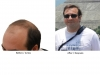 hair-transplant-photo-100