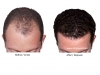 hair-transplant-photo-101