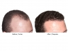 hair-transplant-photo-102