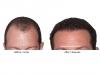 hair-transplant-photo-103