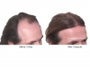 hair-transplant-photo-104