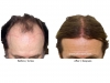 hair-transplant-photo-105