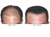 hair-transplant-photo-106