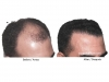 hair-transplant-photo-107