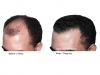hair-transplant-photo-108