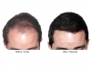 hair-transplant-photo-109