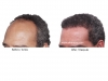 hair-transplant-photo-112