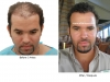 hair-transplant-photo-115