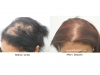 hair-transplant-photo-117