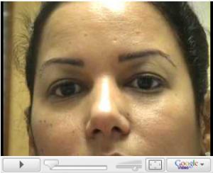 Trasplante de cabello étnico