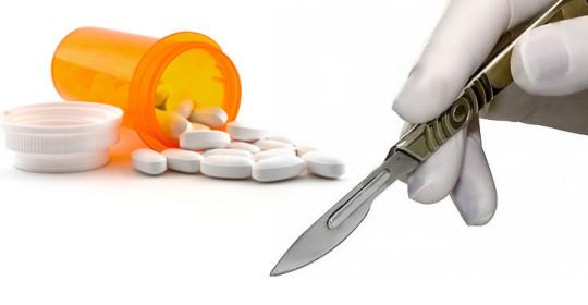 Opciones de trasplante capilar: Medicación vs. Cirugía